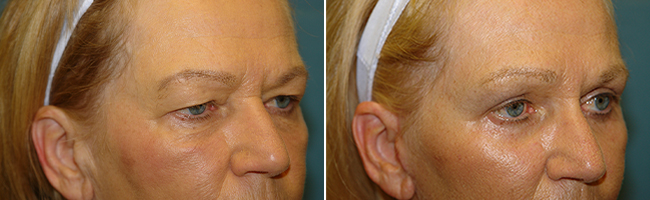 blepharoplasty / brow lift patient before and after Austin TX