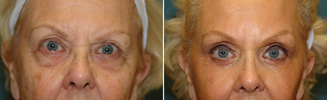 blepharoplasty / brow lift before and after Austin TX