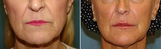 lip enhancement patient