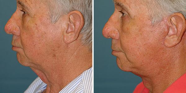 neck lift patient