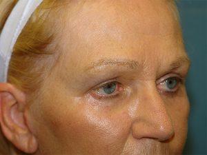 blepharoplasty / brow lift patient