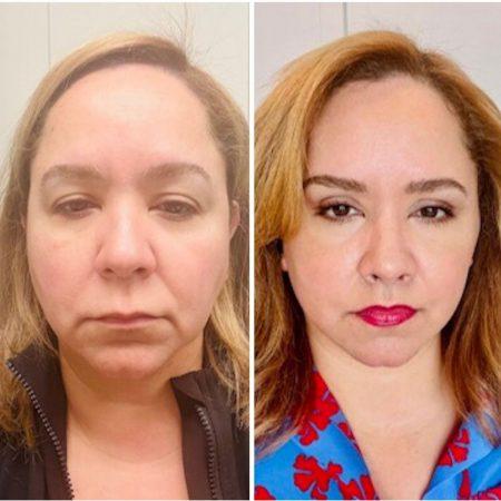 before & after-facelift, brow lift, upper blepharoplasty, lip lift Austin TX