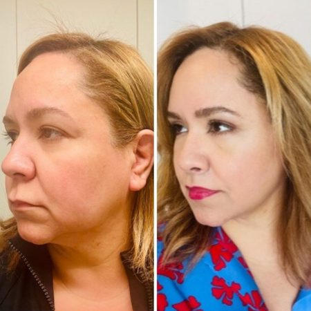 Before & after facelift, brow lift, upper blepharoplasty, lip lift. Austin TX
